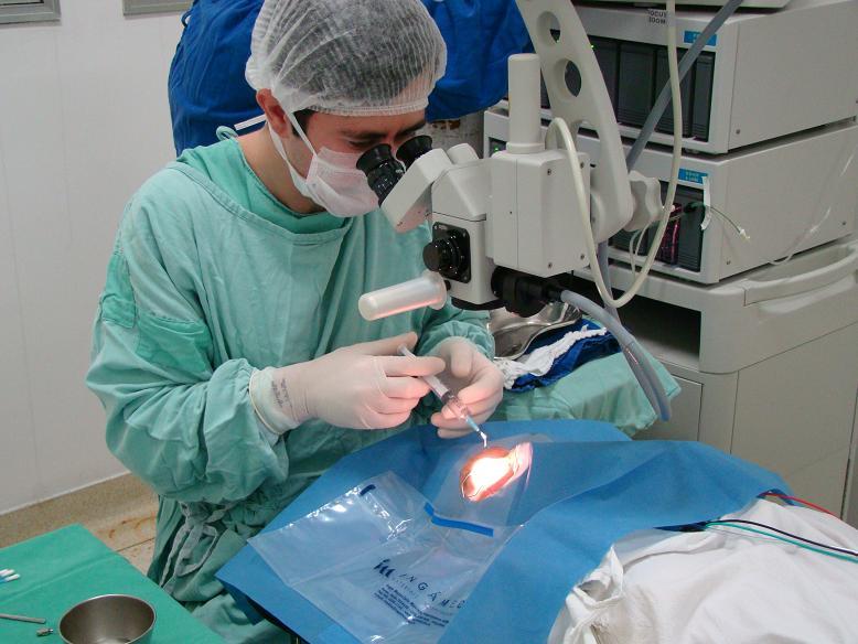 Cirurgia-Catarata-1