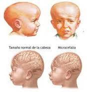 microcefalite