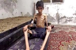 Jovem desnutrido por falta d alimentos na Síria/Foto: Local Revolutionary Council in Madaya/AP)