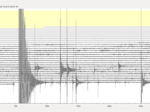 tremor_2